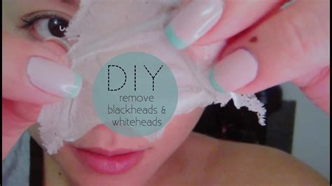 How to Remove Blackheads & Whiteheads   HAUSOFCOLOR - YouTube