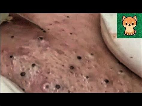 Satisfying Blackheads Removal, Acne Treatment Video with