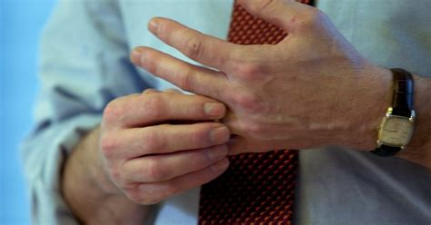Cracking your knuckles can actually be GOOD for your hands